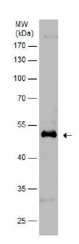 Western blot - Anti-GFAP antibody (ab229350)