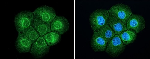 Immunocytochemistry/ Immunofluorescence - Anti-TPR antibody - C-terminal (ab229352)