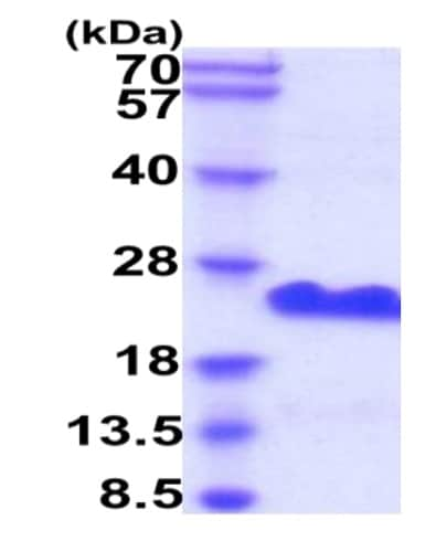 SDS-PAGE - Recombinant Human CD20 protein (His tag) (ab229363)