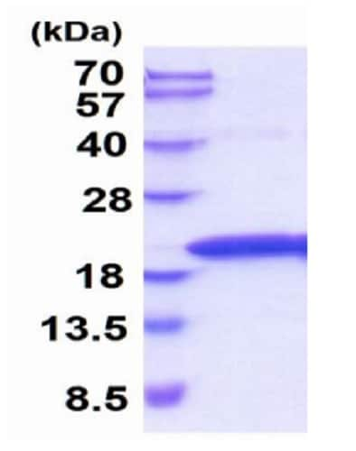 SDS-PAGE - Recombinant rat TNF alpha protein (Active) (ab229366)