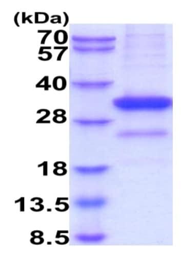 SDS-PAGE - Recombinant Human Mannan Binding Lectin/MBL protein (His tag) (ab229367)