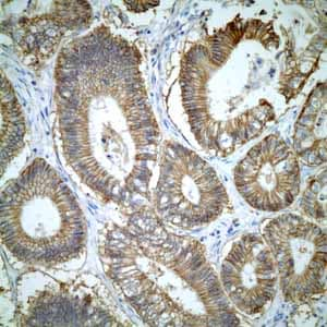 Immunohistochemistry (Formalin/PFA-fixed paraffin-embedded sections) - Anti-CD46 antibody [EPR4014] - Low endotoxin, Azide free (ab229446)