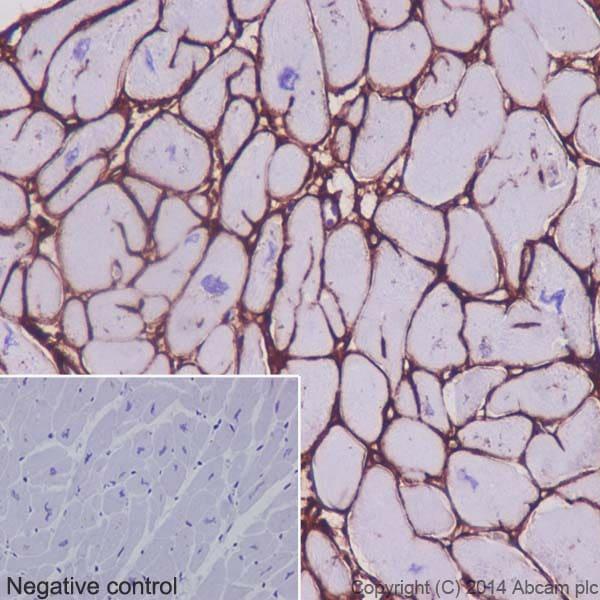 Immunohistochemistry (Formalin/PFA-fixed paraffin-embedded sections) - Anti-Collagen VI antibody [EPR17072] - Low endotoxin, Azide free (ab229450)