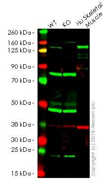 Western blot - Anti-Collagen VI antibody [EPR17072] - Low endotoxin, Azide free (ab229450)