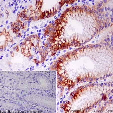 Immunohistochemistry (Formalin/PFA-fixed paraffin-embedded sections) - Anti-Mucin 5AC antibody [EPR16904] - Low endotoxin, Azide free (ab229451)