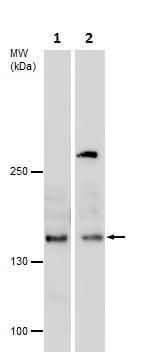Western blot - Anti-KDM3A / JHDM2A antibody (ab229454)