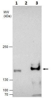 Immunoprecipitation - Anti-KDM3A / JHDM2A antibody (ab229454)