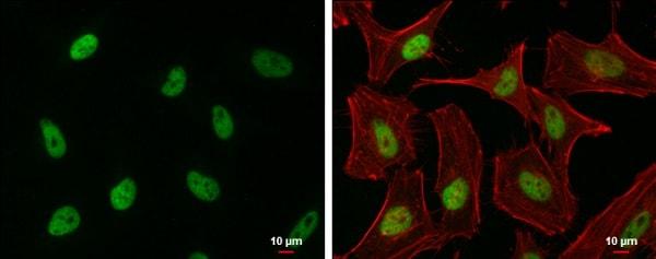 Immunocytochemistry/ Immunofluorescence - Anti-EHMT2/G9A antibody (ab229455)