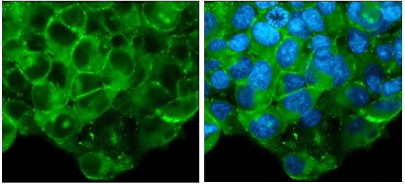 Immunocytochemistry/ Immunofluorescence - Anti-Glypican 3 antibody - C-terminal (ab229462)