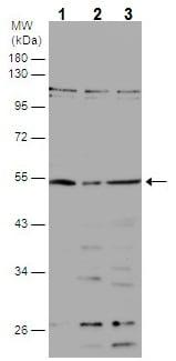 Western blot - Anti-BBS4 antibody - N-terminal (ab229469)