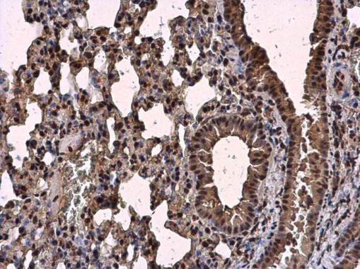 Immunohistochemistry (Formalin/PFA-fixed paraffin-embedded sections) - Anti-SC35 antibody - N-terminal (ab229473)