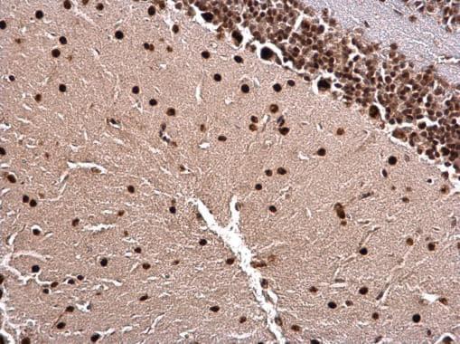 Immunohistochemistry (Formalin/PFA-fixed paraffin-embedded sections) - Anti-LIM1/LHX1 antibody (ab229474)