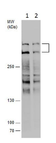 Western blot - Anti-Plectin antibody - C-terminal (ab229476)