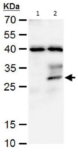 Western blot - Anti-Stanniocalcin 1/STC antibody (ab229477)