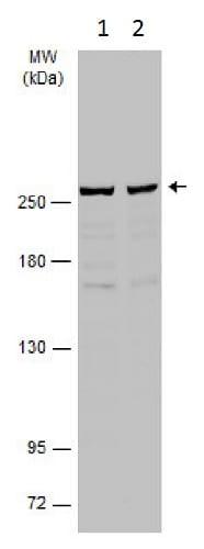 Western blot - Anti-SPTBN1 antibody (ab229478)