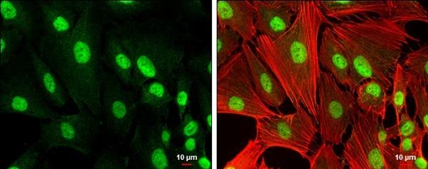 Immunocytochemistry/ Immunofluorescence - Anti-RUNX1 / AML1 antibody (ab229482)
