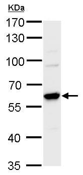 Western blot - Anti-CARM1 antibody - C-terminal (ab229484)