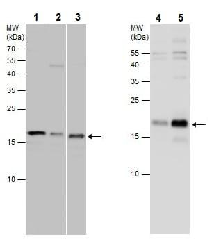 Western blot - Anti-TAF12 antibody (ab229487)