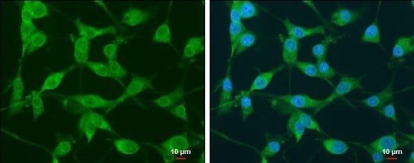 Immunocytochemistry/ Immunofluorescence - Anti-NEK1 antibody (ab229489)