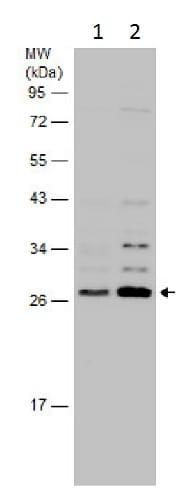 Western blot - Anti-SNRPB2 antibody - N-terminal (ab229560)