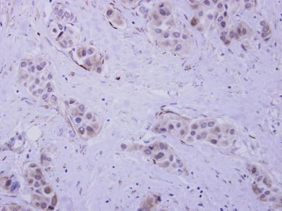 Immunohistochemistry (Formalin/PFA-fixed paraffin-embedded sections) - Anti-HIP55 antibody (ab229562)