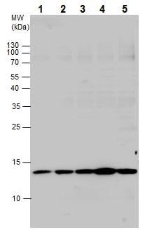 Western blot - Anti-RPS26 antibody - N-terminal (ab229571)