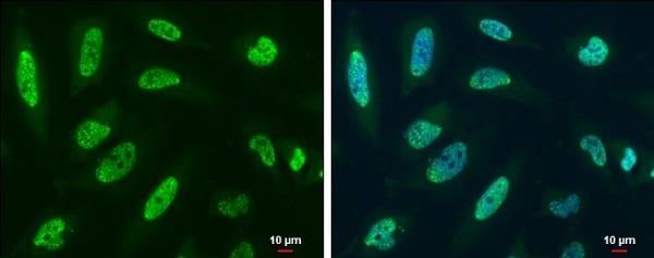 Immunocytochemistry/ Immunofluorescence - Anti-Y14 antibody (ab229573)