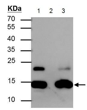 Immunoprecipitation - Anti-Histone H2A (acetyl K5) antibody - N-terminal (ab229578)
