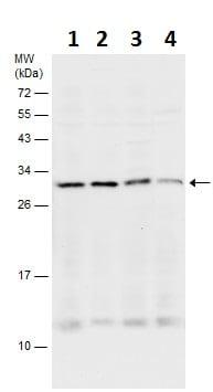 Western blot - Anti-SNAP29 antibody - C-terminal (ab229584)