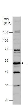 Western blot - Anti-CRF1/CRHR1 antibody (ab229585)