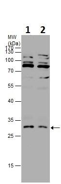 Western blot - Anti-PPP1R3B antibody (ab229586)