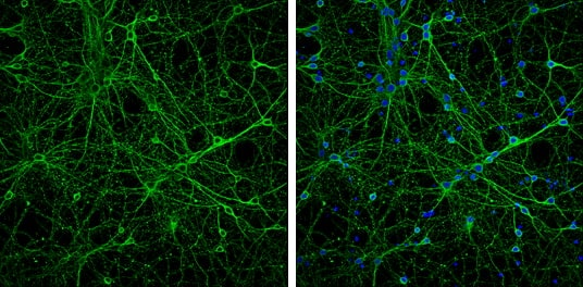 Immunocytochemistry/ Immunofluorescence - Anti-Neuron specific beta III Tubulin antibody (ab229590)