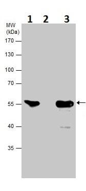 Immunoprecipitation - Anti-Neuron specific beta III Tubulin antibody (ab229590)