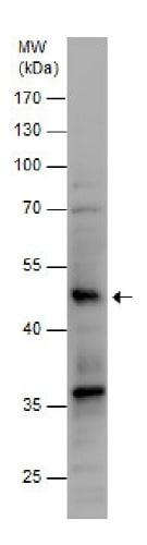 Western blot - Anti-SLC7A9 antibody - C-terminal (ab229602)