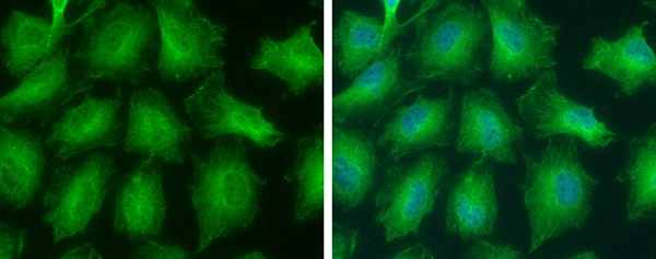 Immunocytochemistry/ Immunofluorescence - Anti-GNPDA2 antibody - N-terminal (ab229607)