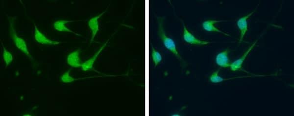 Immunocytochemistry/ Immunofluorescence - Anti-FGF14 antibody (ab229610)