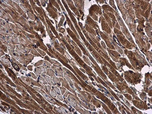 Immunohistochemistry (Formalin/PFA-fixed paraffin-embedded sections) - Anti-NMD3 antibody (ab229611)