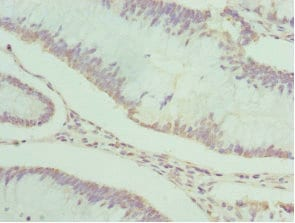 Immunohistochemistry (Formalin/PFA-fixed paraffin-embedded sections) - Anti-PDXK.1 antibody (ab229620)
