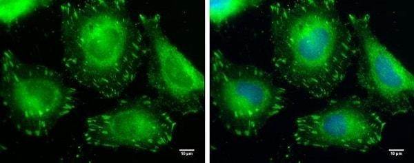 Immunocytochemistry/ Immunofluorescence - Anti-VASP antibody (ab229624)