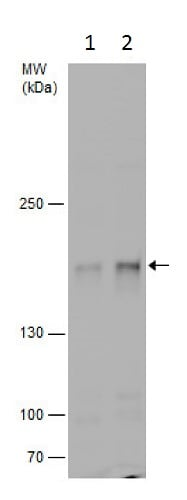 Western blot - Anti-Gemin 5 antibody - C-terminal (ab229640)