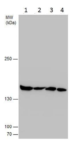 Western blot - Anti-Isoleucyl tRNA synthetase antibody (ab229643)