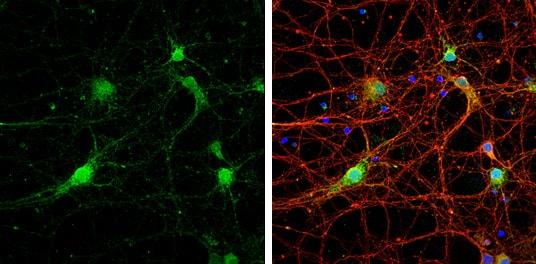 Immunocytochemistry/ Immunofluorescence - Anti-STX17 antibody (ab229646)
