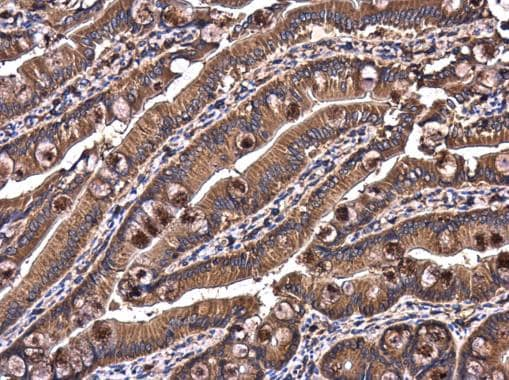 Immunohistochemistry (Formalin/PFA-fixed paraffin-embedded sections) - Anti-RAB7 antibody (ab229647)