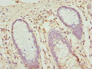 Immunohistochemistry (Formalin/PFA-fixed paraffin-embedded sections) - Anti-OPHN1 antibody (ab229655)