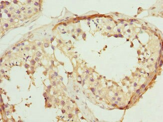 Immunohistochemistry (Formalin/PFA-fixed paraffin-embedded sections) - Anti-VE-PTP antibody (ab229661)