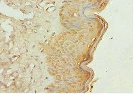 Immunohistochemistry (Formalin/PFA-fixed paraffin-embedded sections) - Anti-GALNT3 antibody (ab229662)