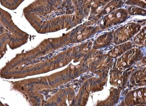 Immunohistochemistry (Formalin/PFA-fixed paraffin-embedded sections) - Anti-VPS15 antibody - C-terminal (ab229665)