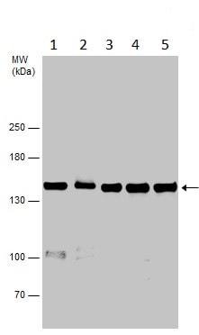 Western blot - Anti-VPS15 antibody - C-terminal (ab229665)