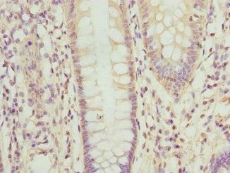 Immunohistochemistry (Formalin/PFA-fixed paraffin-embedded sections) - Anti-OPHN1 antibody (ab229691)