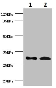 Western blot - Anti-ZWINT antibody (ab229692)